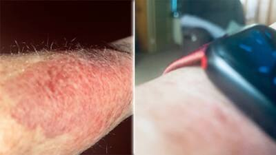 Woman claims Apple watch caused arm reaction